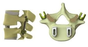 PEEK in Medical Devices Parts